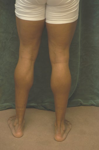 Men's Calf Augmentation  before 519058