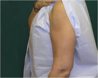 Liposuction of the arms 589893