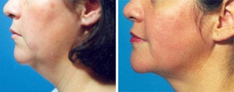 Chin Liposuction before 640692