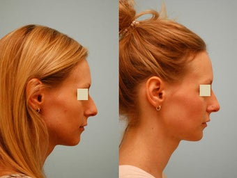 Injectable Fillers (Restylane/Perlane) before 136777