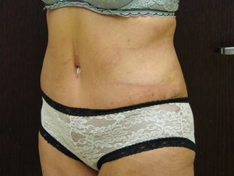 abdominoplasty, liposuction after 597251