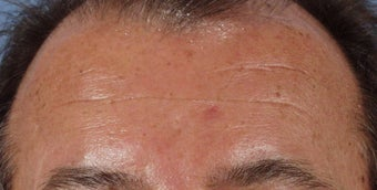 Botox to forehead after 240866