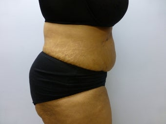 Mini Tummy Tuck and liposuction  590774