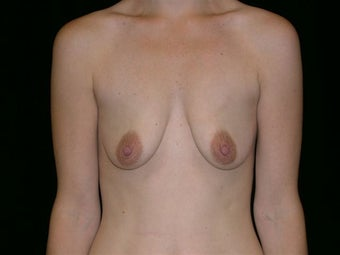 Breast augmentation before 314287