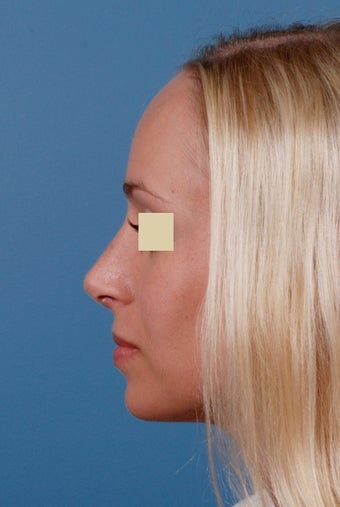 Rhinoplasty Before and After after 146623