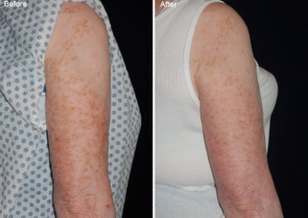 Fraxel laser resurfacing  before 97763
