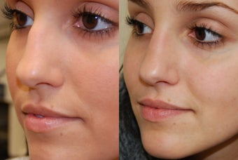 Non-Surgical Rhinoplasty with Silikon-1000 before 257687