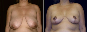 37 year old female, breast reduction before 630924