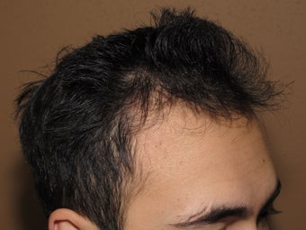 FUE Nograft hair transplantation before 582044