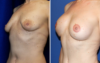 DIEP Instant Implant Breast Reconstruction before 331147