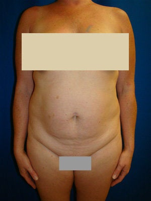 Tummy Tuck Surgery (abdominoplasty) before 142009