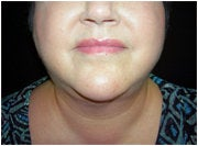 Facial/Submental Liposuction after 205376