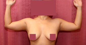 liposuction of arms for women before 583554