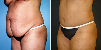 Tummy Tuck (Abdominoplasty) with Liposuction before 262729