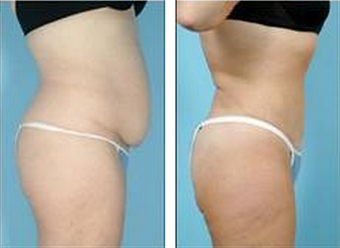 Tummy Tuck (Abdominoplasty) 324853