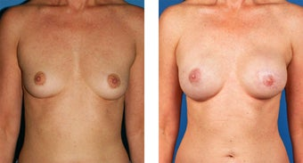 Breast Reconstruction: One-Stage Breast Reconstruction before 561837