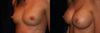 Breast Augmentation 382853