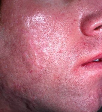 Acne Scarring after 157587