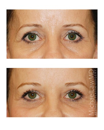 Brow Lift after 495496