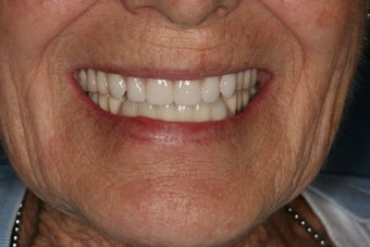 Implant supported overdentures after 480893