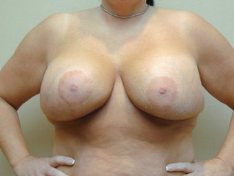 Subglandular Breast Augmentation after 469021