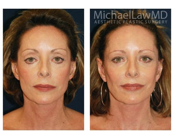 Cheek Augmentation after 415259