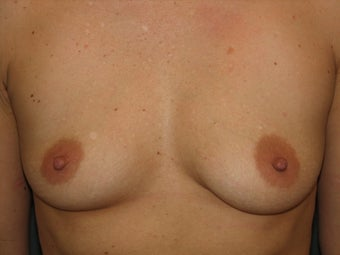 Breast Augmentation  before 384406