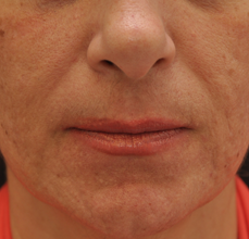 Acne Scarring after 426030