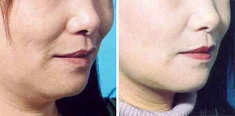 Chin Liposuction before 640680