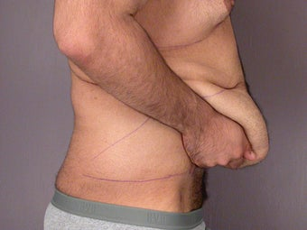 After Weight Loss Male Tummy Tuck before 280821