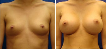 Breast Augmentation before 240531
