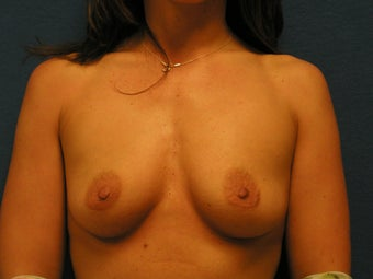 Breast Augmentation before 475949
