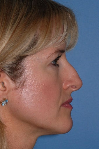 Rhinoplasty before 87108
