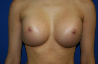 Breast implants after 241854