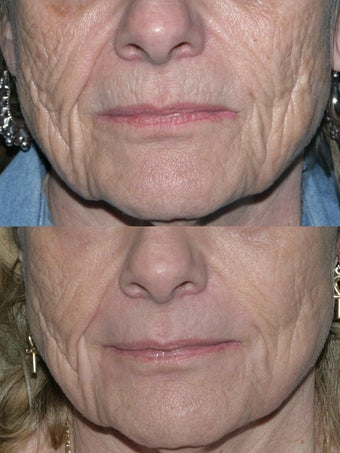 Fraxel repair with C02/Erbium lasers for upper lip wrinkles before 104308