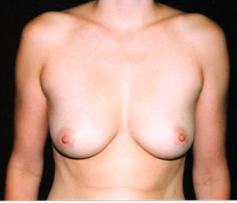 Breast augmentation before 474762
