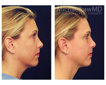 Chin Liposuction 395819