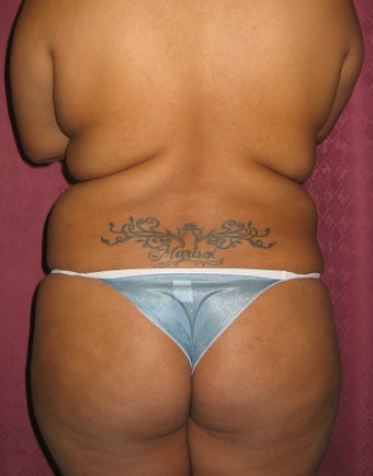 Back Liposuction before 53382