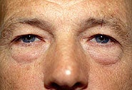 Before and After Blepharoplasty and Brow Lift