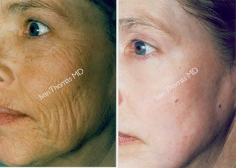 Non-Surgical Face Lift- Exoderm  before 242986