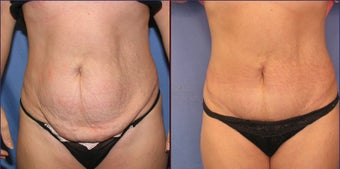 Mini Tummy Tuck before 98608