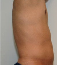 Smartlipo in Males before 123628
