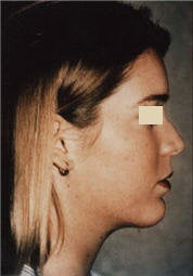 Chin Implant/Necklift/MiniLipo after 101596