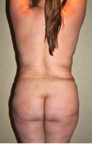 Liposuction after 521677
