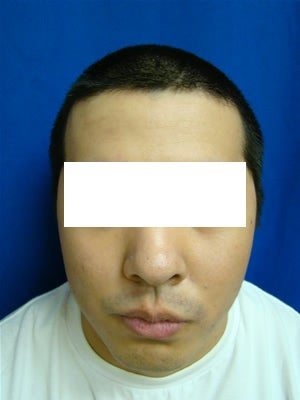 Ear Surgery (otoplasty) after 135282