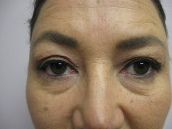 Blepharoplasty before 340077