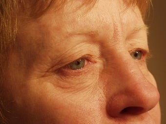 Eyelid surgery with CO2 laser resurfacing before 140083