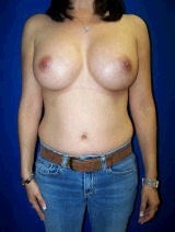 Breast Augmentation after 418008