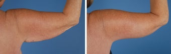 Arm Lift (Brachioplasty) 303695