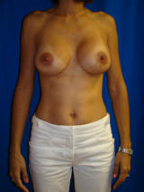 Breast Augmentation with Benelli Lift